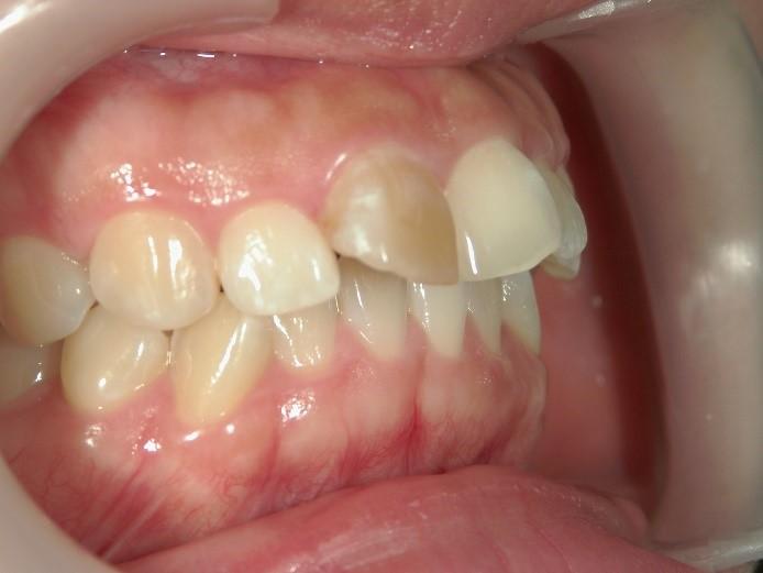 セラミック矯正前の出っ歯1