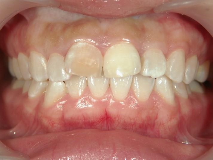 セラミック矯正前の出っ歯2