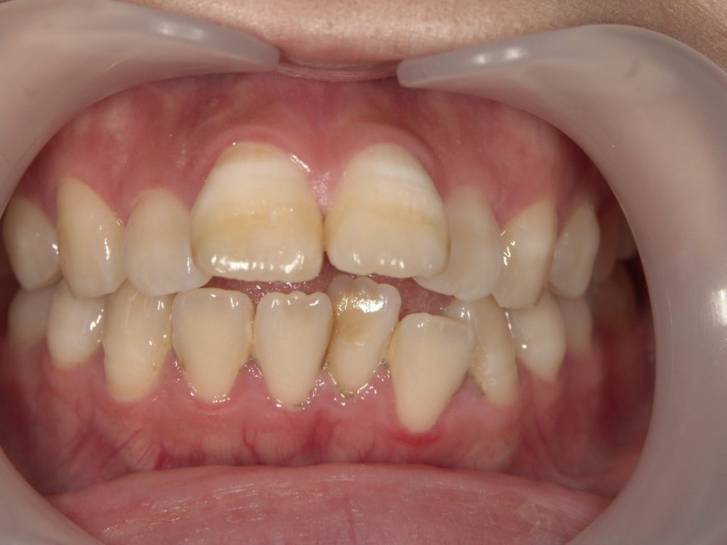 出っ歯のセラミック矯正前
