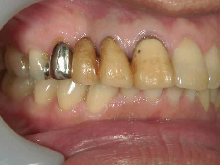 銀歯を白くする治療前