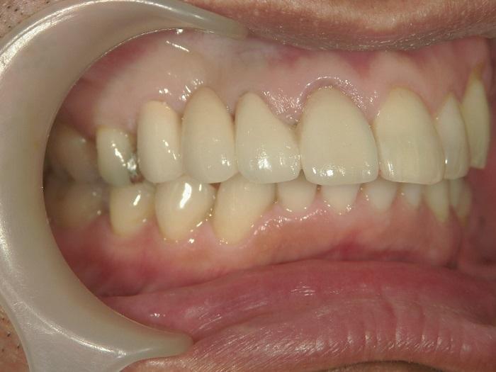 銀歯のセラミック治療後