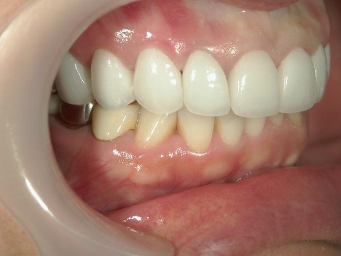 銀歯のセラミック矯正後