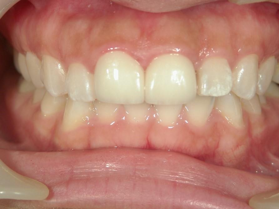 セラミック矯正後の出っ歯