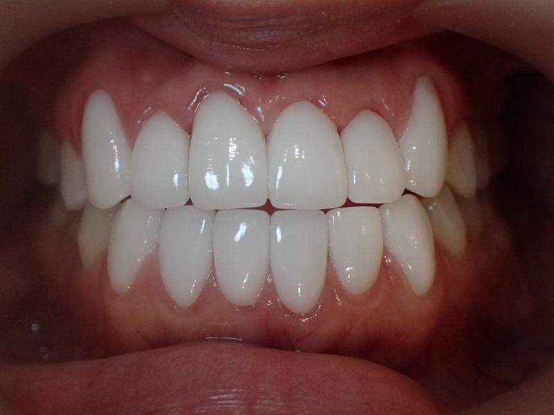 芸能人のような白い歯