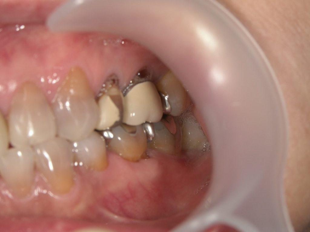 歯の美容整形前