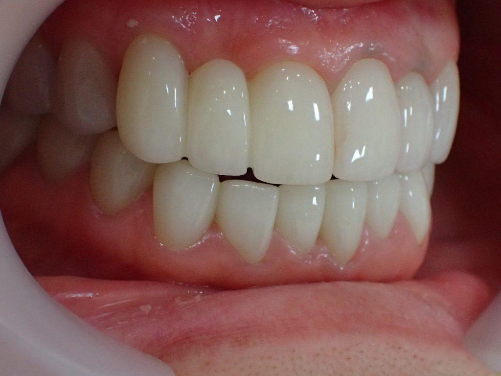 歯の美容整形後