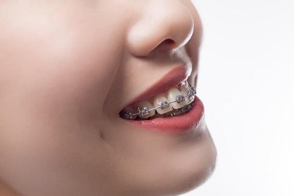 ワイヤー矯正による出っ歯改善