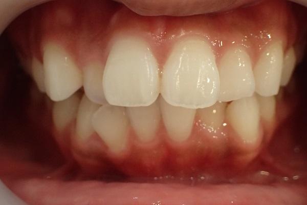 歯茎の整形治療前