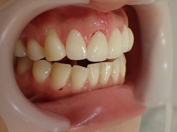 前歯4本の口ゴボ治療後