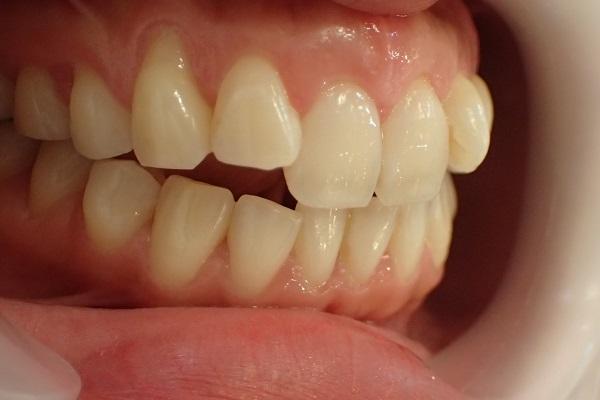 前歯4本の口ゴボ治療前