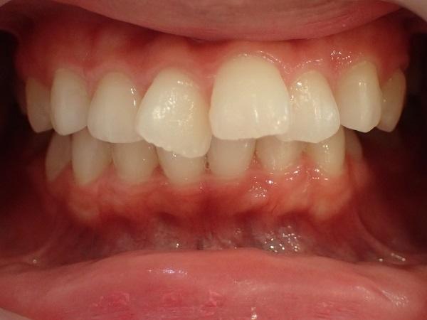 口ゴボ2本の症例治療前