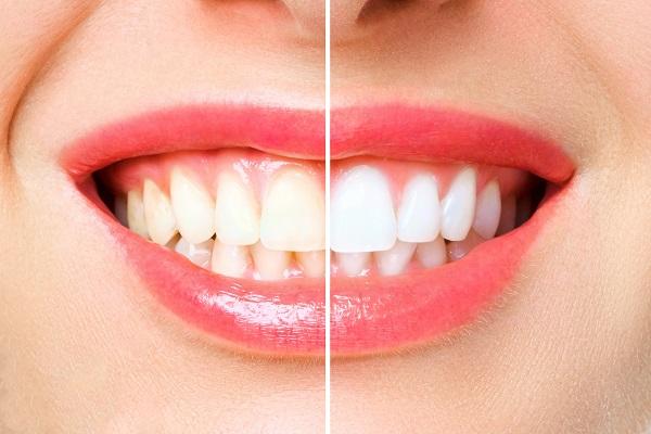 複数歯をまとめて白く