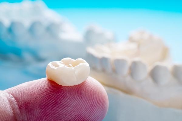 歯の大きさ・形も変えられるセラミック治療