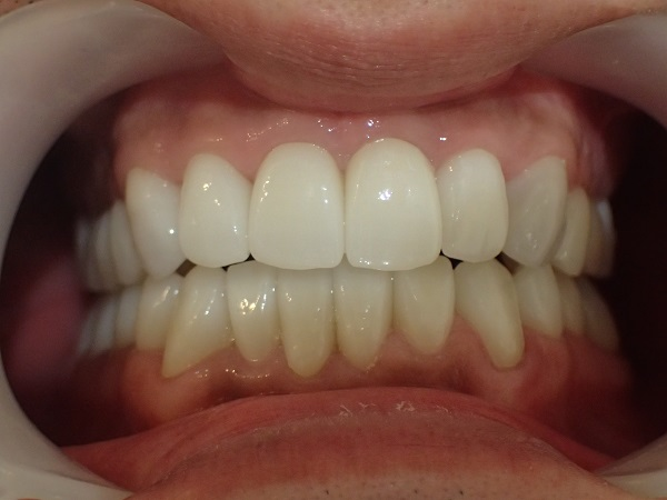 歯の美容整形治療後写真