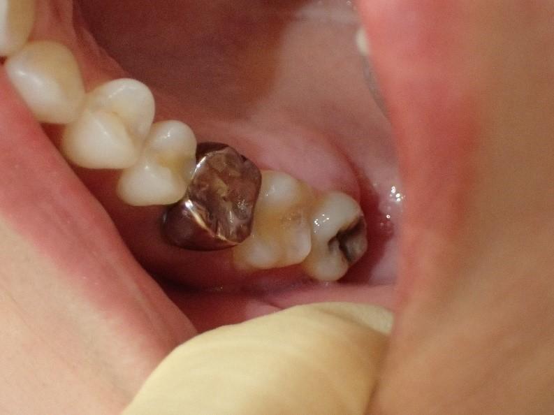 銀歯1本の白い歯治療前