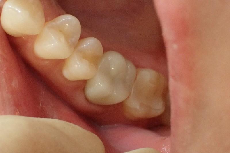銀歯1本の白い歯治療後