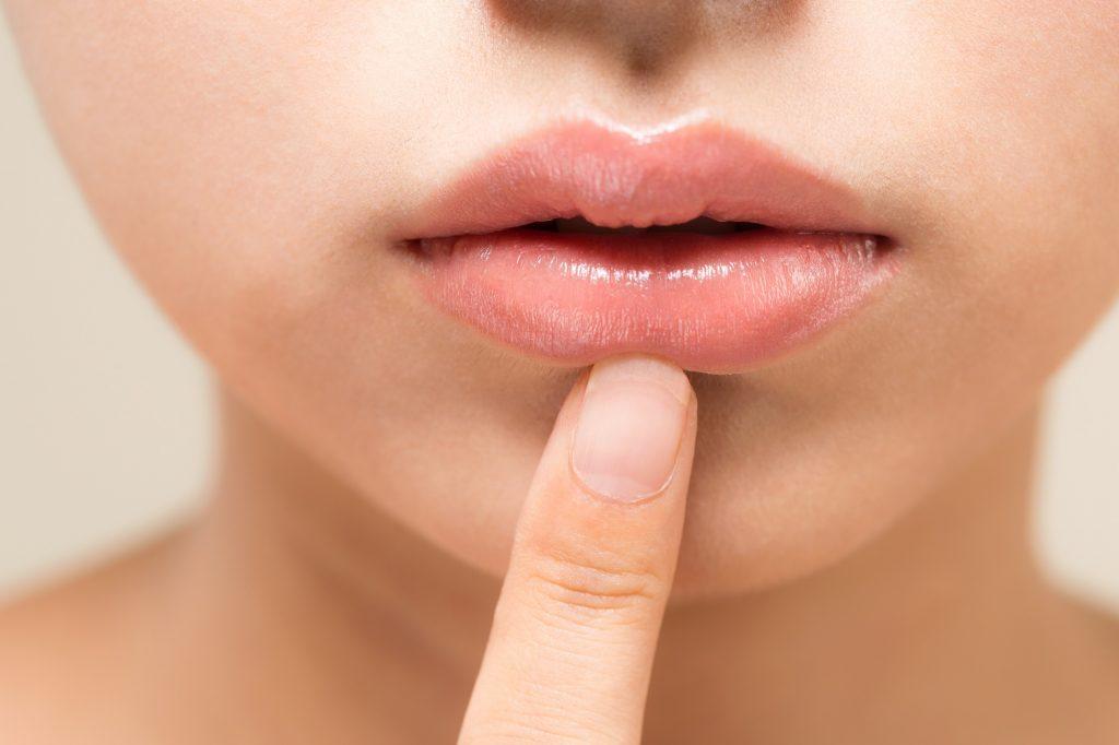 唇に原因のあるガミースマイル