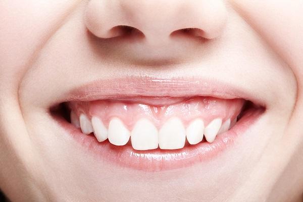 歯ぐきに原因のあるガミースマイル