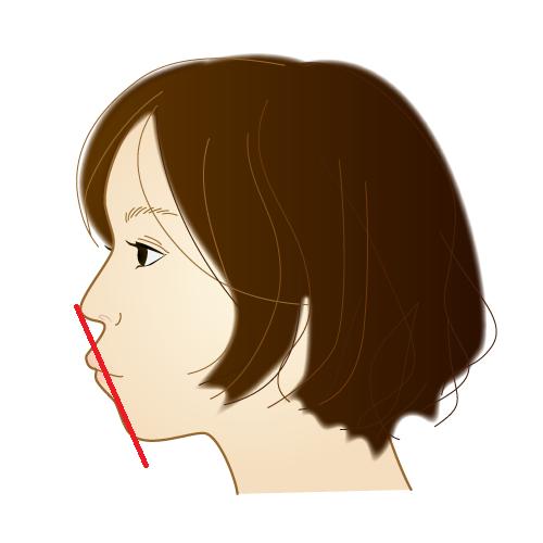 口ゴボの状態の横顔