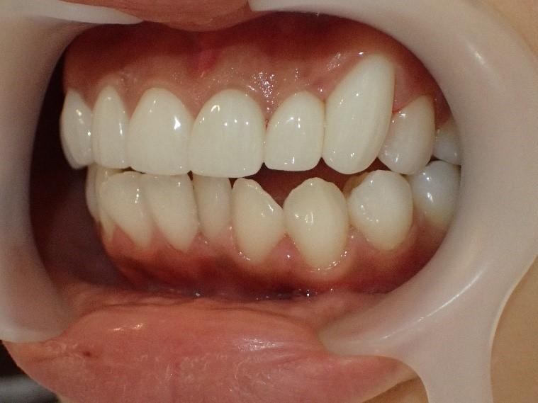 出っ歯6本のセラミック矯正後