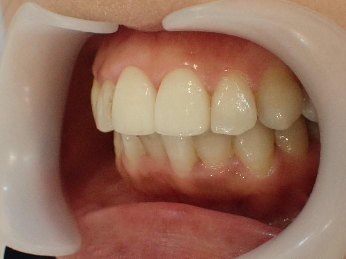 前歯2本のセラミック矯正後