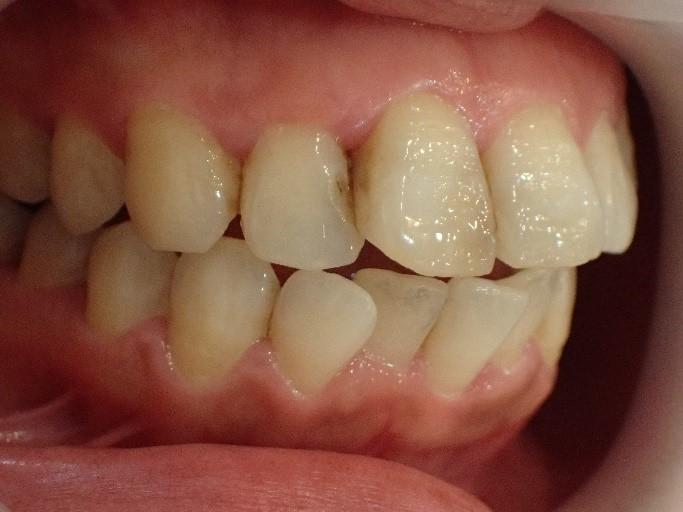 前歯2本の出っ歯治療前