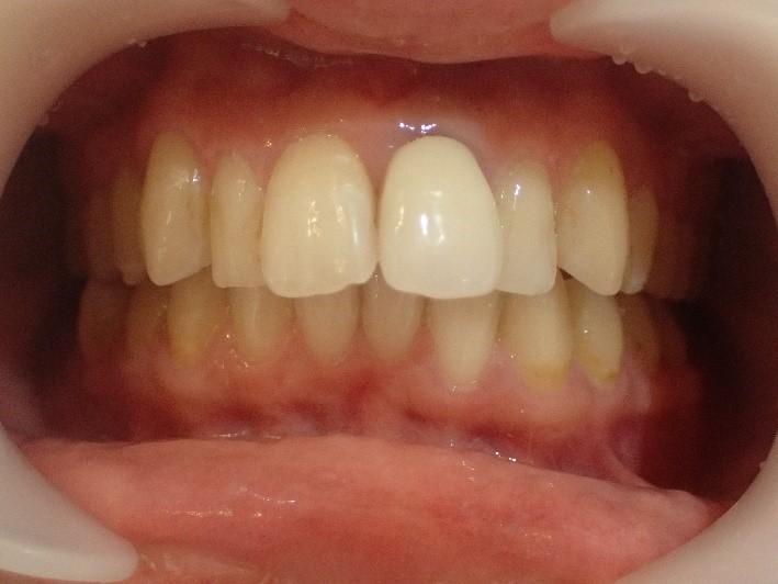 前歯4本の出っ歯治療前