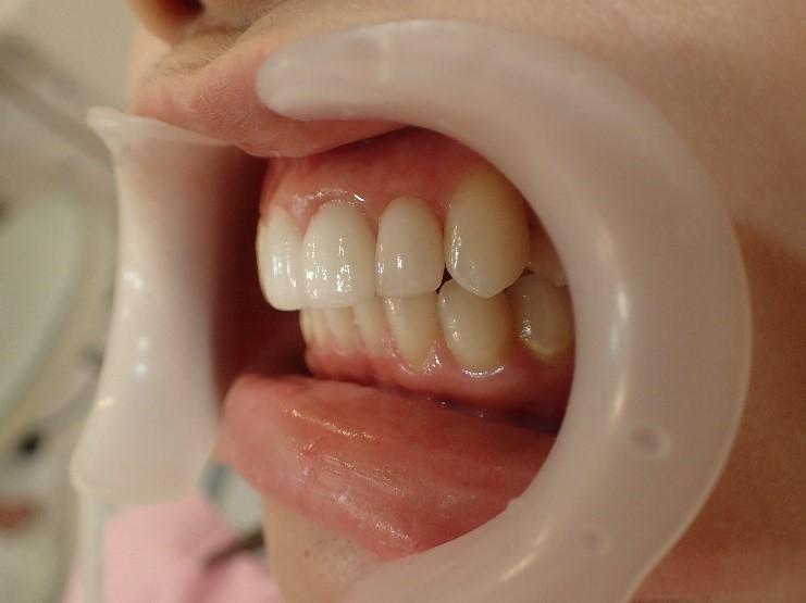 前歯4本の出っ歯のセラミック矯正後