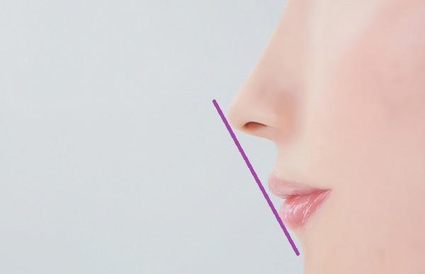 上顎前突とEラインの関係