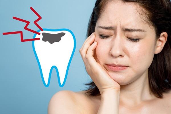 上顎前突による虫歯リスク