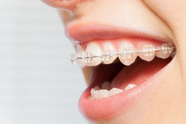 ワイヤー矯正による上顎前突治療