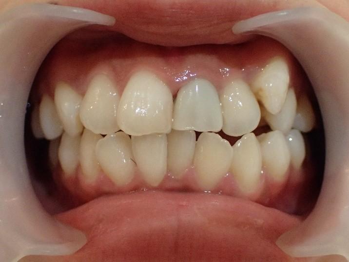 出っ歯6本の治療前
