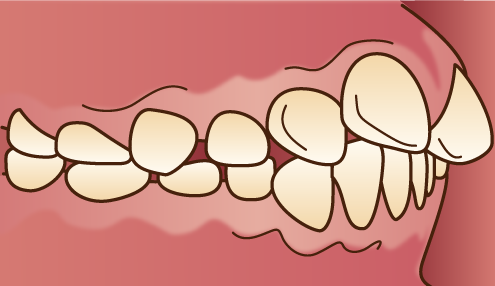 上顎前突の原因