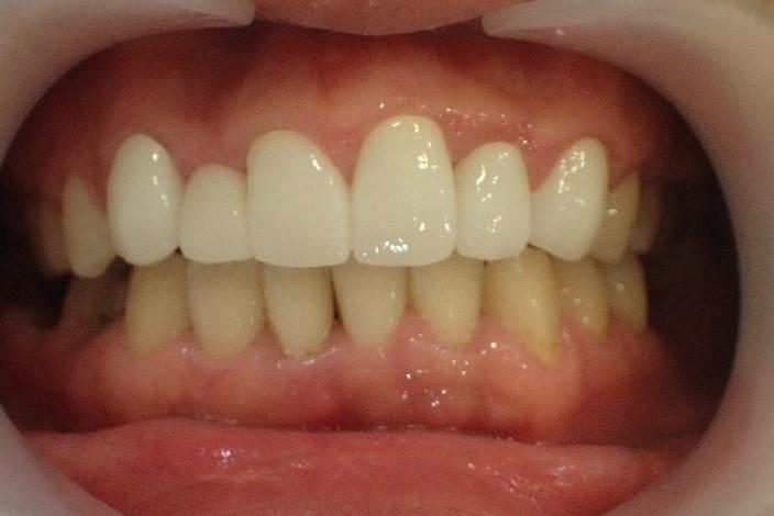 叢生(がちゃ歯)のセラミック矯正後