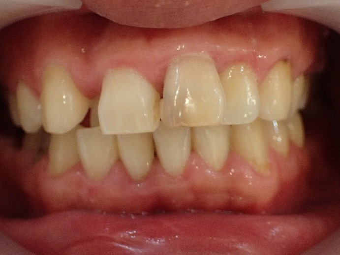 叢生(がちゃ歯)のセラミック矯正前