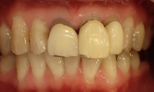 金属色が原因の歯茎の黒ずみ