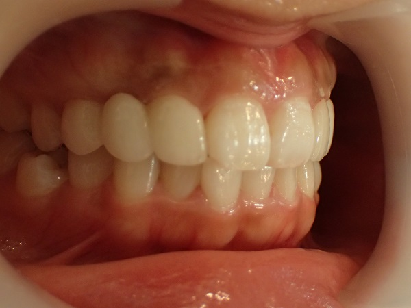 歯並びはキレイな口ゴボのセラミック矯正後