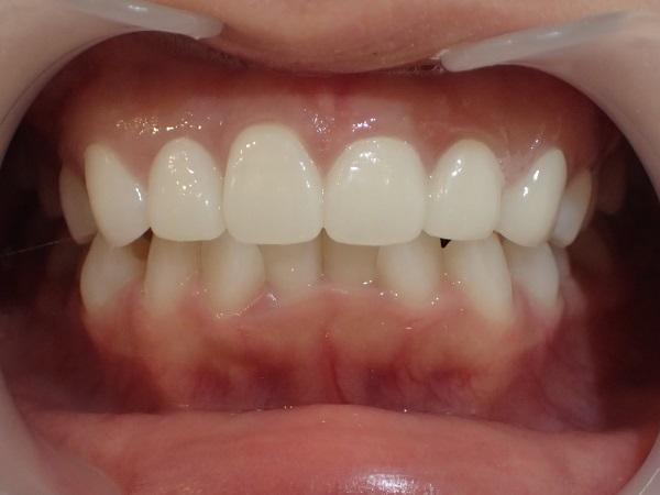 歯の大きさ・傾きが原因の口ゴボのセラミック矯正後