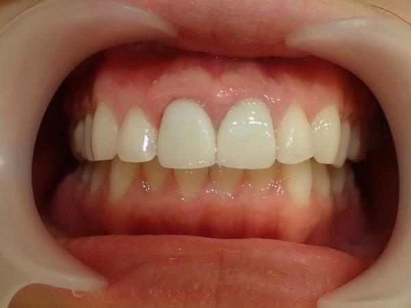 すきっ歯のセラミック矯正後