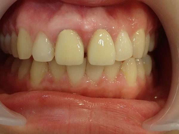 すきっ歯のセラミック矯正前