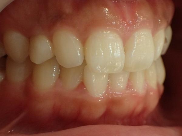 歯並びはキレイな口ゴボのセラミック矯正前