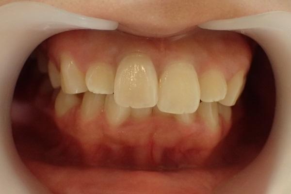 歯の大きさ・傾きが原因の口ゴボのセラミック矯正前