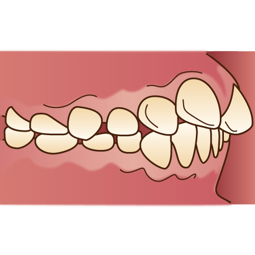 出っ歯の状態の口もと