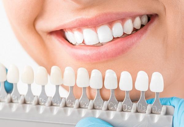 歯の大きさや白さも改善
