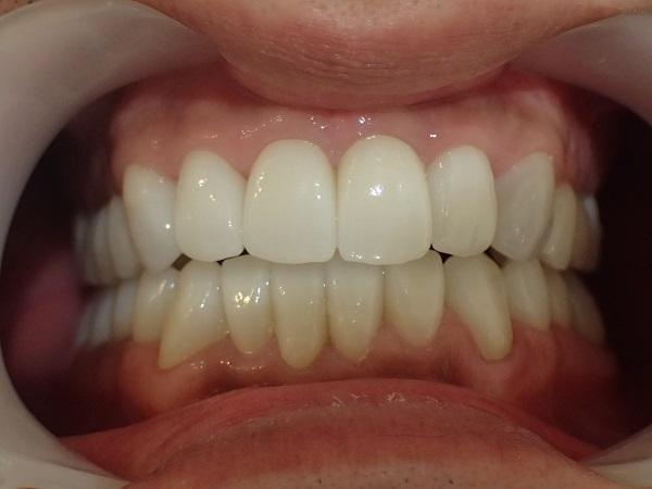 テトラサイクリン歯のセラミック治療後