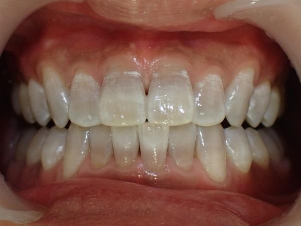 テトラサイクリン歯のホワイトニング後