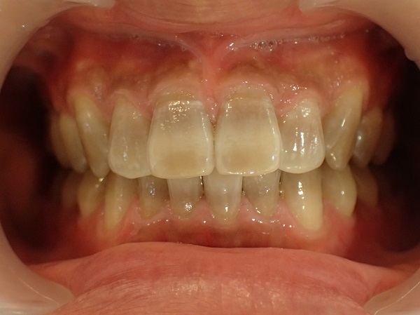 テトラサイクリン歯のホワイトニング前