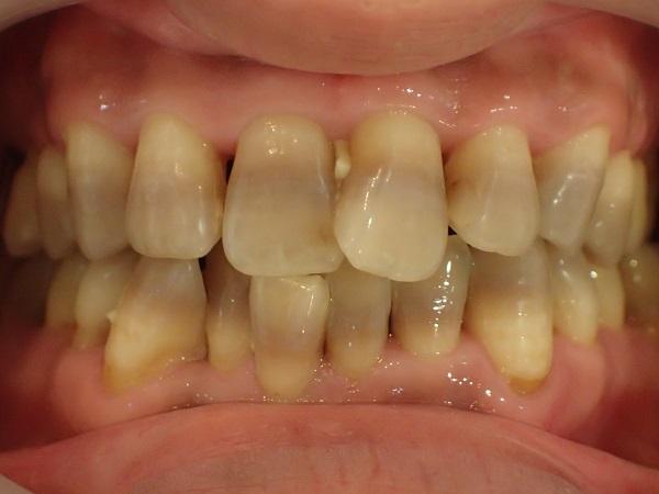 テトラサイクリン歯のセラミック治療前