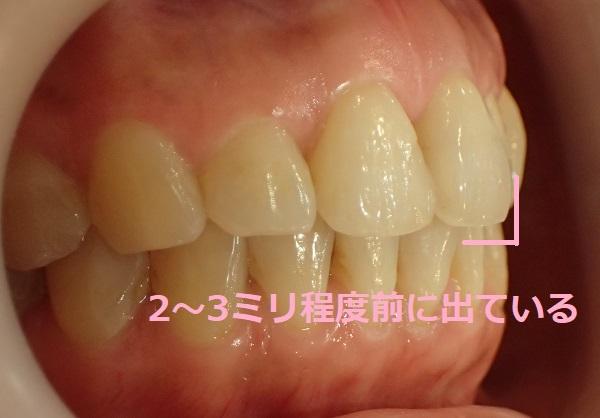 上顎の前歯が下顎よりも2ミリ程度前に出ている症例