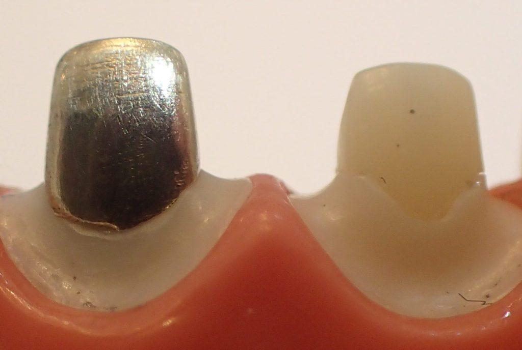 金属のコアとメタルフリーコアの比較